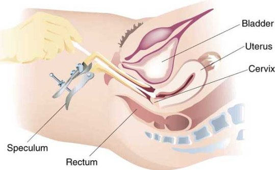 Pelvic Exam Illustration